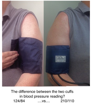 Right Size Blood Pressure Cuff vs Too Small Cuff