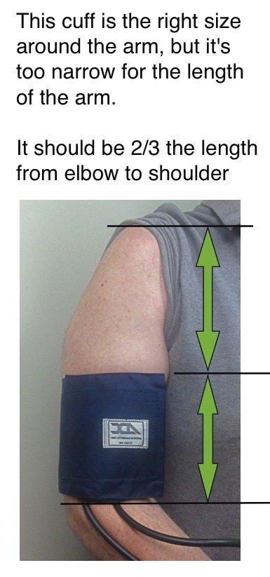 Blood Pressure Cuff Too Narrow Picture